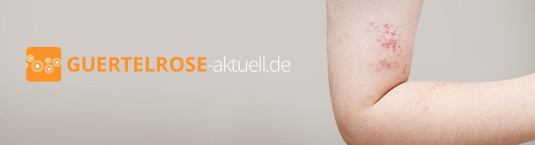 guertelrose-aktuell.de